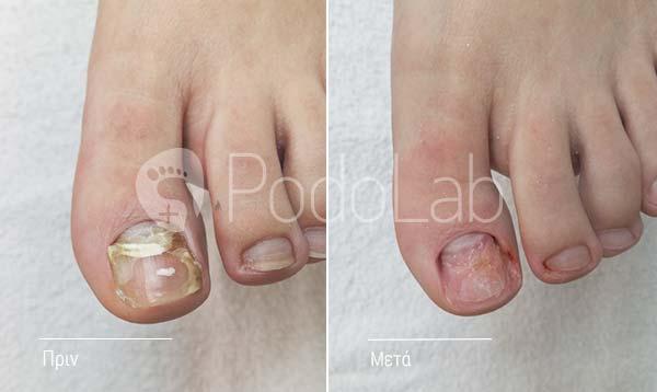 podolab-podologia-podologos-glyfada-dermatikes-pathisis-mikites-nail-podi-prin-meta-full