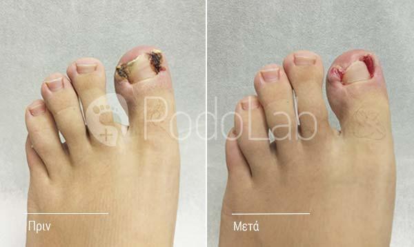 podolab-podologia-podologos-glyfada-dermatikes-pathisis-onixokriptoso-nail-podi-prin-meta-fulll