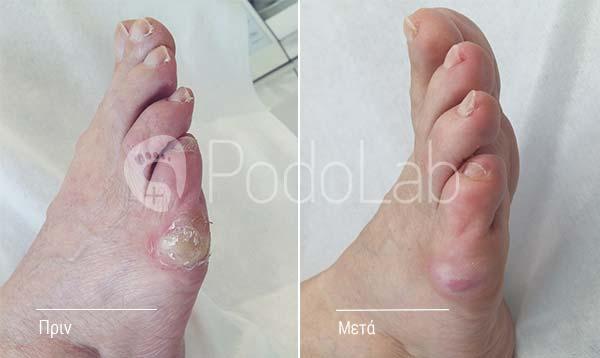 podolab-podologia-podologos-glyfada-kali-dermatikes-pathisis-iperkeratosis-podi-prin-meta-full