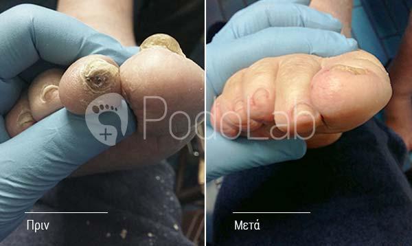 podolab-podologia-podologos-glyfada-pathisis-diabitiko-podi