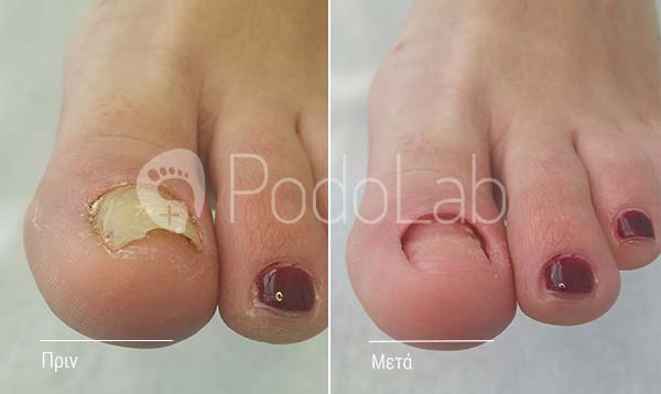 podolab-podologia-podologos-glyfada-dermatikes-pathisis-mikites-nail-podi-prin-meta