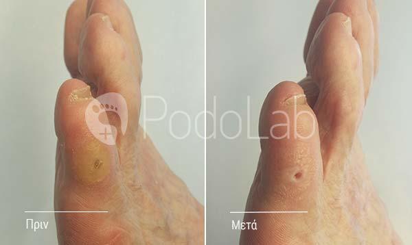 podolab-podologia-podologos-glyfada-kali-dermatikes-pathisis-iperkeratosis-podi