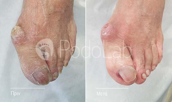 podolab-podologia-podologos-glyfada-pathisis-kotsi-podi-prin-meta-full-2